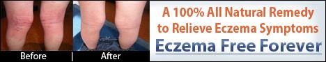How To Treat Baby Eczema