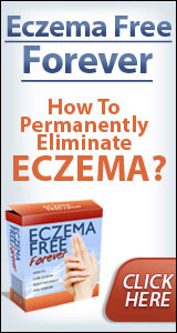 Eczema Free Forever - E-book Review